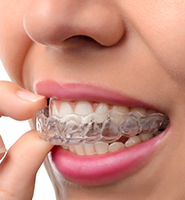 Clear Aligners - Almost Invisible Braces Armonk, NY