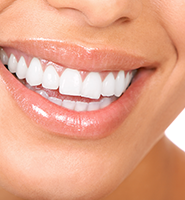 Teeth Whitening Services Armonk, NY