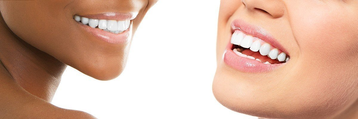 Armonk Dental Restoration